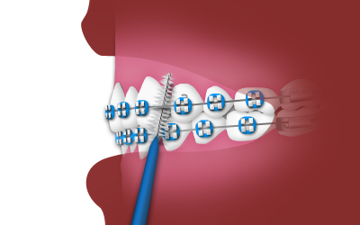 interdental.png